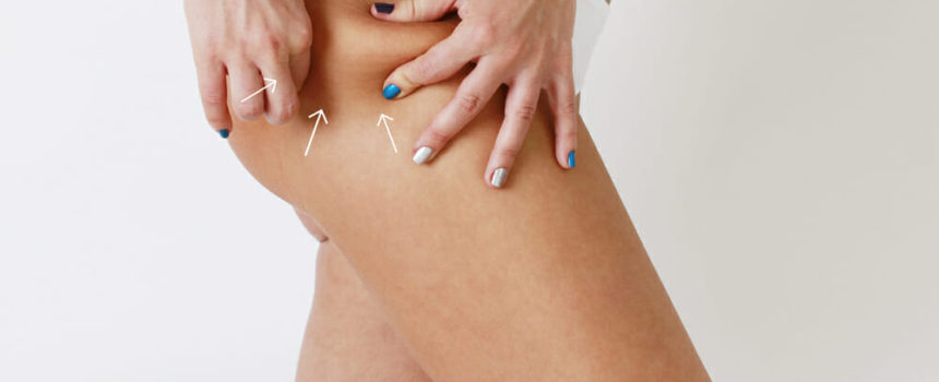 le gmp 4 efficace contre la cellulite